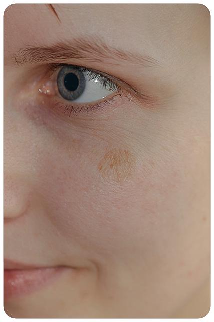 pigmentfleck